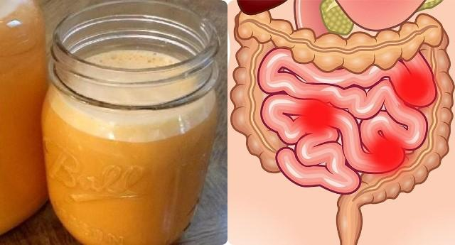 Как без лекарств очистить толстый кишечник от шлаков и токсинов 1
